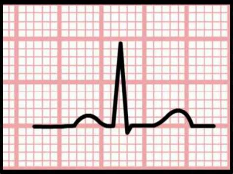 ECG Interpretation - Time and the ECG (Section 1, Part 5